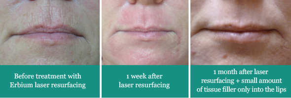 Erbium Laser Resurfacing of the Mouth Region  for Elimination of Wrinkles