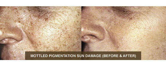 IPL Before & After - Mottled Pigmentation Sun Damage