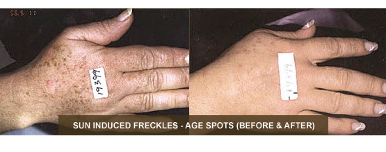 IPL Before & After - Sun Induced Freckles - Age Spots